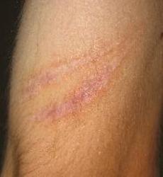 cara menghilangkan bekas luka di kaki yang sudah lama secara alami